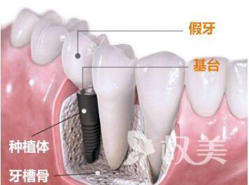 全口种植牙要多少钱  包头伊维美悦己整形医院种植牙的效果怎么样