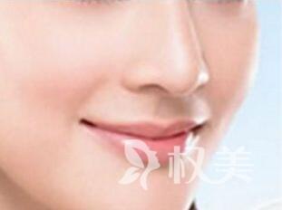 汕头曙光整形医院驼峰鼻手术价格 解决你的鼻部缺陷