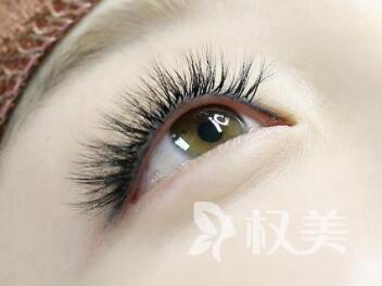 郑州大学第二附属医院植发科种睫毛好吗 睫毛种植适宜人群