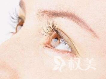 浙江割双眼皮的费用是多少 埋线双眼皮能维持多久