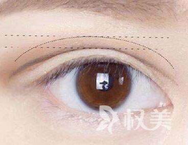 重庆做眼部整形哪家好 切开双眼皮多少钱