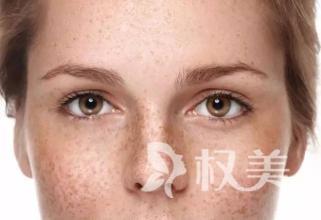 """上海果酸嫩肤如何选择医院   光滑白嫩不一""""斑"""""""