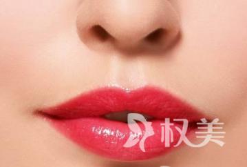 海口美兰红妆医院什么是重唇 重唇整形的恢复时间