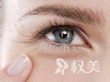 怎样去掉眼角皱纹 武汉韩辰整形医院激光去眼角纹效果好
