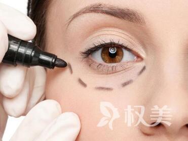 眼袋下垂怎么办  武汉中盛整形医院激光去眼袋的六个优点