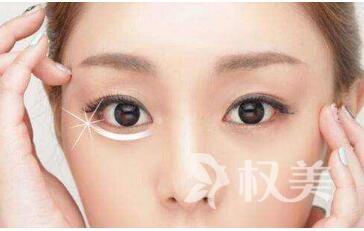 去除眼袋有哪些方法  长沙世锦整形医院激光祛眼袋效果好吗