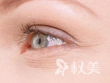眼睛长细纹怎么办 苏州金阊整形医院专家推荐激光除皱术