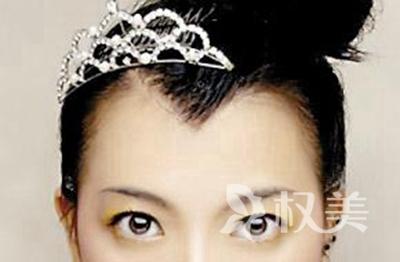 武汉美人尖种植哪家好 美人尖种植多久见效