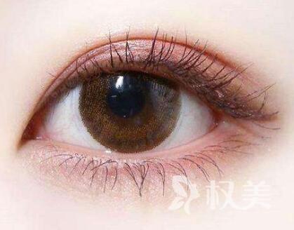 双眼皮切开法效果怎么样 杭州做切开双眼皮需要多少钱
