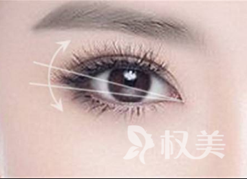 郴州曹家整形医院埋线双眼皮需要多少钱  双眼释放精彩