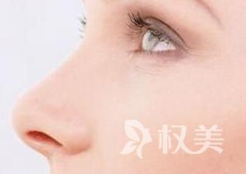 太原时光整形医院驼峰鼻修复价格 让鼻子更漂亮