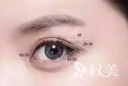 哈尔滨割双眼皮好还是埋线好  切开双眼皮手术价格贵不贵