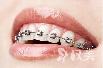 西安牙齿矫正大概多少钱 成年人牙齿矫正需要多久