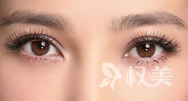 达州紫荆整形双眼皮和开眼角价格优惠信息    正常一周恢复自然
