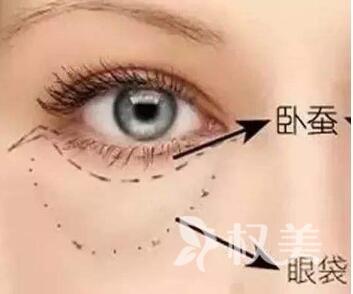 脂肪型眼袋怎么去除  包头东河赵云庆整形医院吸脂去眼袋有哪些优势