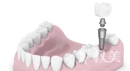 种植牙和一般假牙有什么区别 安徽韩美口腔医院牙齿种植多少钱