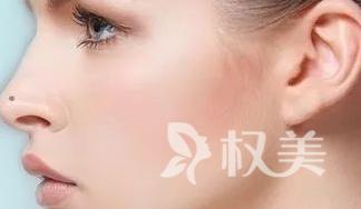 什么样的鼻子是鼻翼肥大 广州丘山整形医院鼻翼肥大整形多少钱