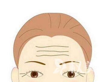 有了抬头纹怎么办  武汉甄美整形医院激光去抬头纹的优势
