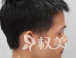 重庆真伊医院植发医生做鬓角种植 拯救你的秃鬓角