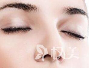 三明第五医院整形科隆鼻价格 假体隆鼻后注意事项