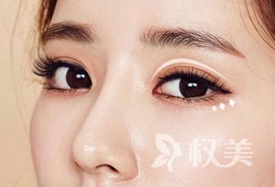 大庆彤名整形做双眼皮怎么样 割双眼皮需要多少钱