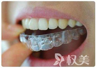 龙岩市矫正牙齿哪家好 牙齿矫正大概要多少钱