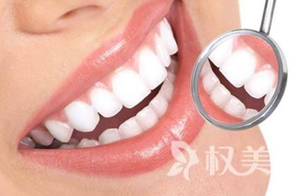 北京南区口腔医院激光美白牙效果好不好   美白效果维持多久