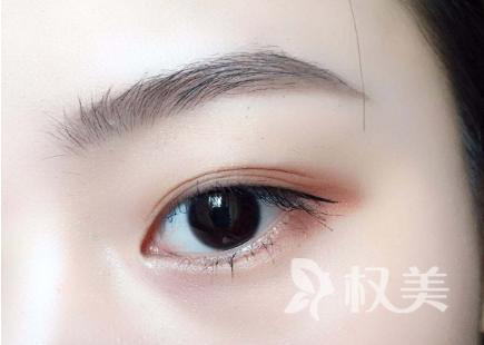 海口好的眼部整形医生 做切开双眼皮效果像天生的吗