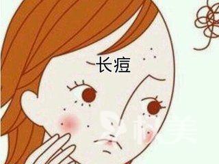 郑州153医院激光美容中心去痘印小方法