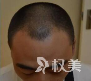 四川大学华西医院植发科植发风险  四川头发加密需要多少钱