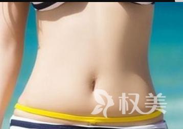 醴陵华美整形医院腰腹吸脂减肥的优势  小蛮腰即刻拥有