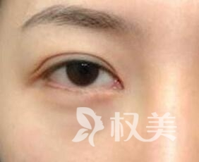 郴州铭医整形医院去下眼袋多少钱 激光去眼袋打造无痕魅眼