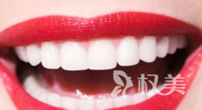 未成年人能不能做种植牙 武汉爱齿尔口腔医院牙齿种植的优势