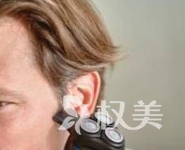 青岛海伦做鬓角植发 提升你的魅力值