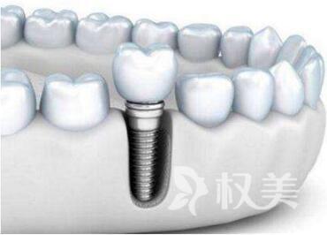 武汉种植牙哪家医院好  武汉黄为整形医院种植牙有哪些优势呢