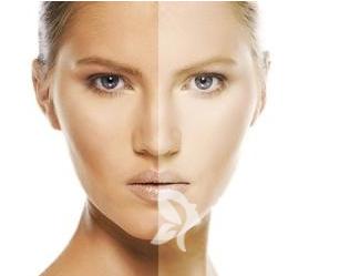激光美白嫩肤做几次才有效 成都玉颜激光美白嫩肤有副作用吗