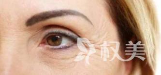 青岛时光整形医院激光去鱼尾纹除皱的优势 护理方法
