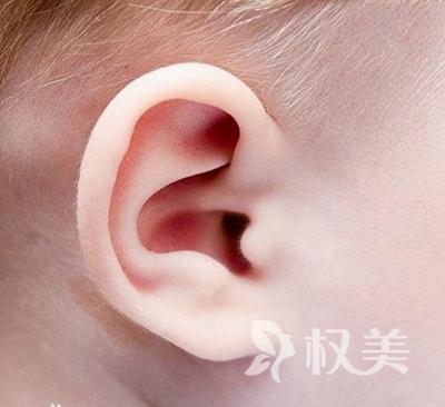 耳部整形要多少钱 福州台江医院整形科小耳畸形矫正费用