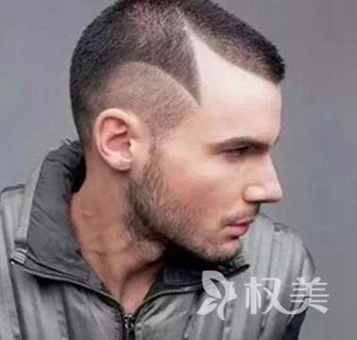 鬓角秃怎么办 武汉雍禾鬓角植发为您种出有型鬓角