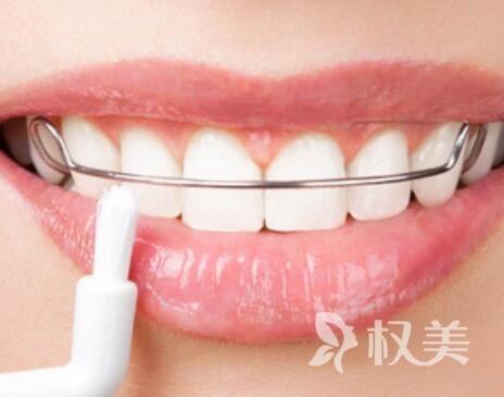 重庆医科大学附属口腔医院整形科牙齿隐形矫正价格表