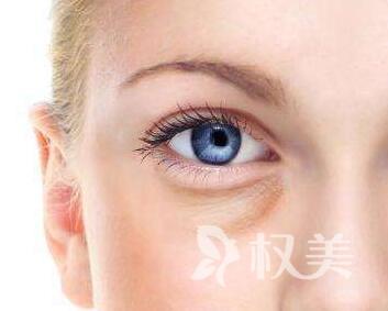 去眼袋的好方法是哪种 石嘴山第二人民医院整形科吸脂去眼袋效果