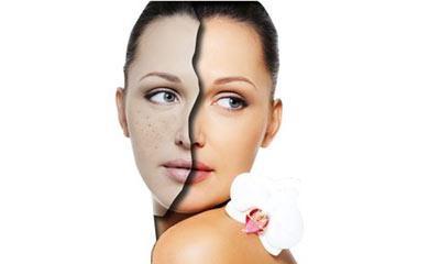 皮肤美容厦门哪家美容医院好 激光美容祛斑价钱是多少