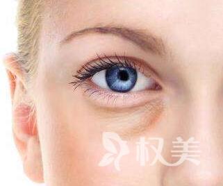 自贡西婵整形医院眼袋手术的费用 激光去眼袋多少钱