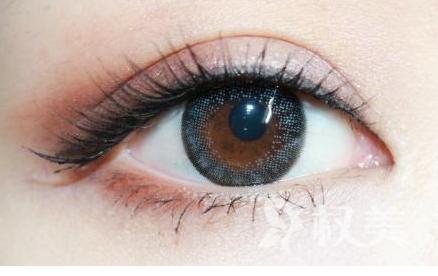 切开双眼皮手术价格 北京双眼皮手术好的医院排名