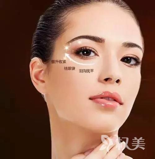 上海做吸脂去眼袋多少钱  会不会反弹