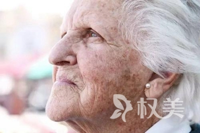 韩美激光祛斑多少钱 安徽韩美激光去老年斑贵吗