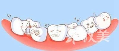 南通牙齿矫正哪里比较好 儿童牙齿矫正需要多少钱