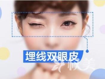 烟台王医生整形医院【双眼皮整形】埋线双眼皮/切开双眼皮/整形活动价格表