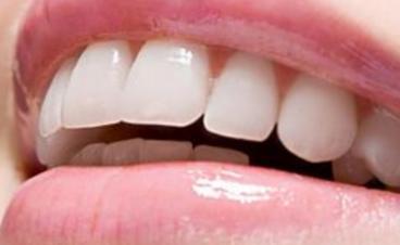 牙齿矫正价格  上海申德整形医院牙齿矫正多少钱