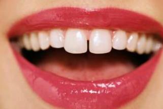 种植牙齿价钱要多少 广州军美整形医院种植牙价格